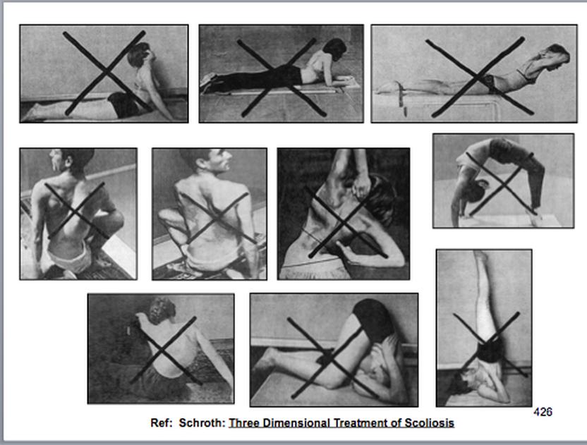 Гимнастика шрот при сколиозе упражнения