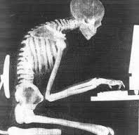 рентгенологическое исследование при сколиозе